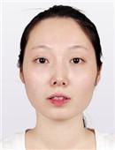 韩国博朗温整形医院怎么样?海量案例恢复对比图