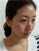 韩国脸部脂肪填充整形案例日记_术前
