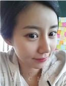 韩国顶级整形-韩国非切开发眼型矫正效果看得见