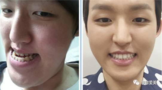 双鄂手术前后牙齿对比