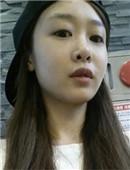 韩国济颜吉假体隆鼻修复手术真实日记