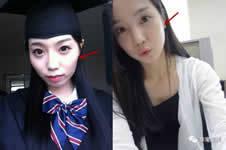 韩国颧骨整形案例对比,术后变化好惊艳!