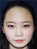 韩国多娜非切开发际线种植手术真实日记_术后