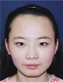 韩国多娜非切开发际线种植手术真实日记_术前