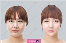 韩国ID开创V3提升术让时光倒流的童颜术
