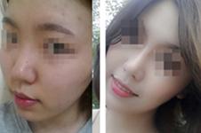 隆鼻后假体外露 分享我在韩国will医院做鼻修复的全过程