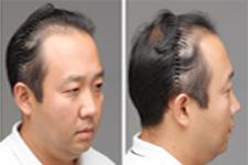为了女儿,他去韩国延世毛百丽医院做了植发手术
