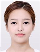 韩国眼鼻修复+面部综合整形记录真实全过程