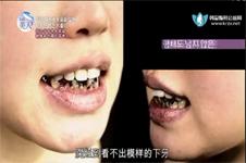 牙齿糜烂《let美人》告诉您韩国new face口腔医院种植牙多少钱