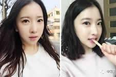 韩国面部轮廓手术优势有哪些?整形案例告诉你!