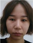 韩国皮肤科水光针注射全过程 我也拥有了明星牛奶肌