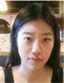 韩国ID整形医院-双鄂整形有危害吗?看我在ID医院的效果你就放心啦