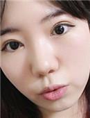 亲身体验:我在韩国割得双眼皮全过程 效果自然无痕