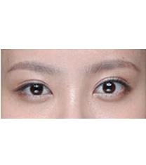 半島眼整形外科-雙眼皮手術對比案例
