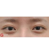 双眼皮对比图
