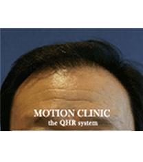 毛发移植手术案例对比图_术后