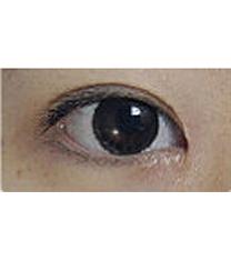 埋线双眼皮整形对比案例