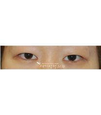 双眼皮手术对比图