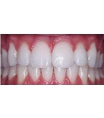 牙齿美白案例对比图