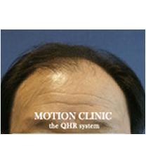 毛发移植手术案例对比图_术前