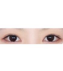 双眼皮手术案例对比图