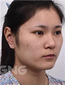 真人案例分享:韩国下颌角+鼻子整形恢复全过程记录