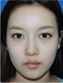 面部自体脂肪填充+玻尿酸隆鼻过程真人案例分享