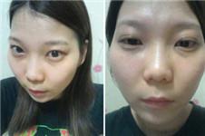 韩国改善高颧骨的手术方式有哪些?