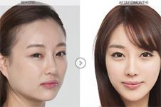 韩国颧骨缩小哪里比较好?费用要多少呢?