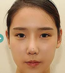 韩国TS整形医院双眼皮修复案例_术后