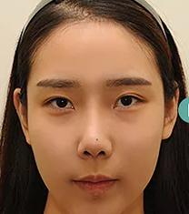 韩国TS整形医院双眼皮修复案例_术前