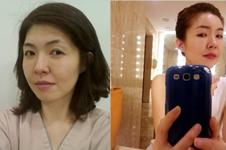 韩国哪家全脸脂肪填充技术好???