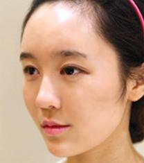 韩国艾恩整形医院-韩国艾恩整形misko隆鼻案例对比图