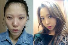 韩国眼鼻哪家整形做的效果更好?