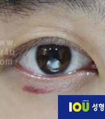 韩国iou整形外科上眼睑下垂矫正案例对比图