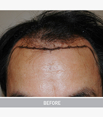 韩国毛杰琳整形医院男性毛发移植案例对比图