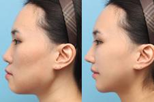 垫下巴手术能改变一个人的脸型吗?