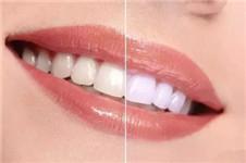 有谁知道在韩国哪家牙科医院比较出名的?