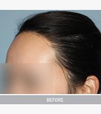 韩国毛杰琳整形医院女性发际线调整案例对比图