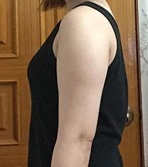 韩国rovl劳波儿医院手臂吸脂案例对比图