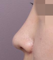 韩国高诺鼻CONOPI整形外科医院隆鼻案例对比图