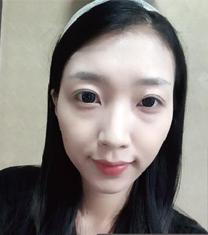 韩国延世PLUS整形外科脂肪移植案例对比图_术前