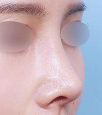 韩国朱诺整形外科短鼻矫正案例对比图_术后