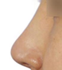 韩国Yumastem医院鼻整形前后对比图_术后