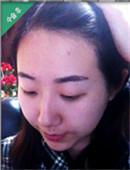韩国多娜发际线种植效果怎么样?来看看我的真实经历吧!_术后