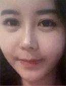 韩国TL整形医院-做面部溶脂提升亲身经历 前后反差巨大!