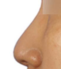 韩国Yumastem医院鼻整形前后对比图_术前