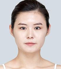 爱琳整形外科面部轮廓成型案例对比图_术前