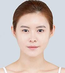 爱琳整形外科面部轮廓成型案例对比图_术后