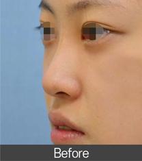 秀梦HUMAN整形外科医院隆鼻案例对比图_术前